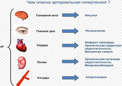 артериальная гипертензия гипертоническая болезнь сердечно сосудистые заболевания 11 я городская поликлиника г минска